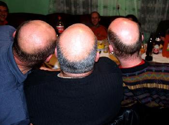 Glatzen