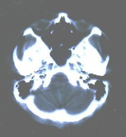 diagnose: präsenile demenz